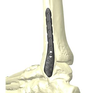 HAI腓骨遠位端後外側ロッキングプレートシステム